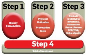 urticaria steps of treatment